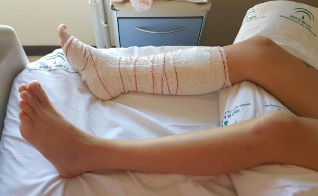 Un perro de raza peligrosa ataca brutalmente a una joven en Aguadulce y le desgarra una pierna