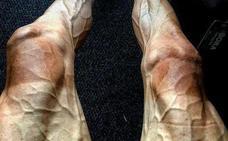 La impactante foto de las piernas de un ciclista en el Tour