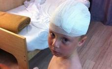 Le cae una jaula de metal en la cabeza a un niño en un espectáculo de magia en Benidorm