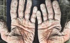 La espeluznante foto de las manos de un doble oro olímpico en remo