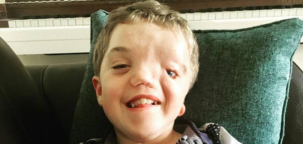 Instagram retira una foto de un niño con deformidad facial