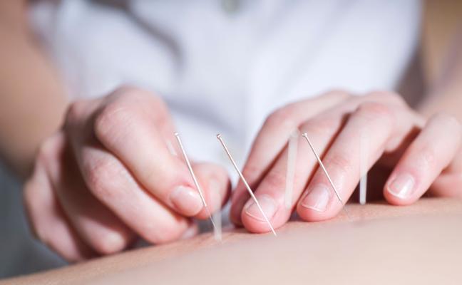 ¿Por qué es positiva la acupuntura?