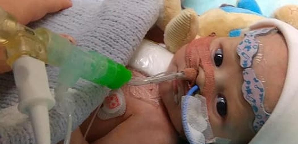 El desesperado S.0.S de una madre para que su bebé de 5 semanas pueda sobrevivir