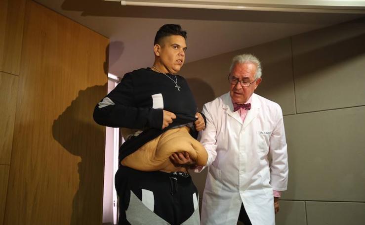 """La impresionante operación para eliminar """"40 kilos de colgajos de piel"""" en Granada"""