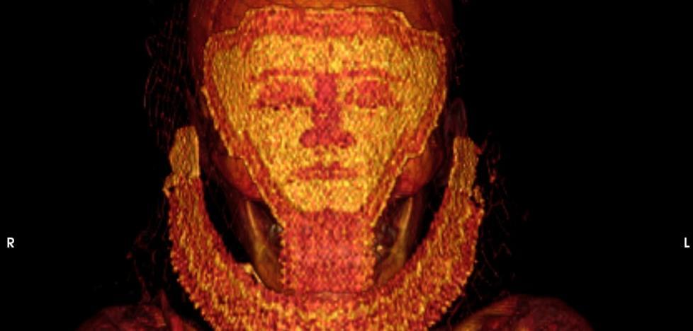 Un estudio de la UJA halla en una momia el cáncer de mama más antiguo del mundo