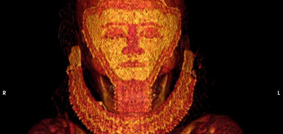 Científicos de la UGR hallan en una momia el cáncer de mama más antiguo
