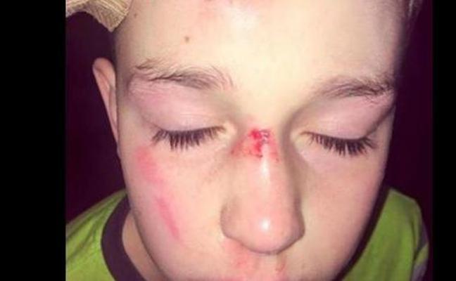 La rabia de una madre por el acoso a su hijo autista de 11 años en el colegio
