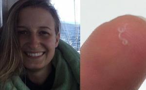 Extraen 14 gusanos del ojo a una mujer infectada por un parásito que afecta a las vacas