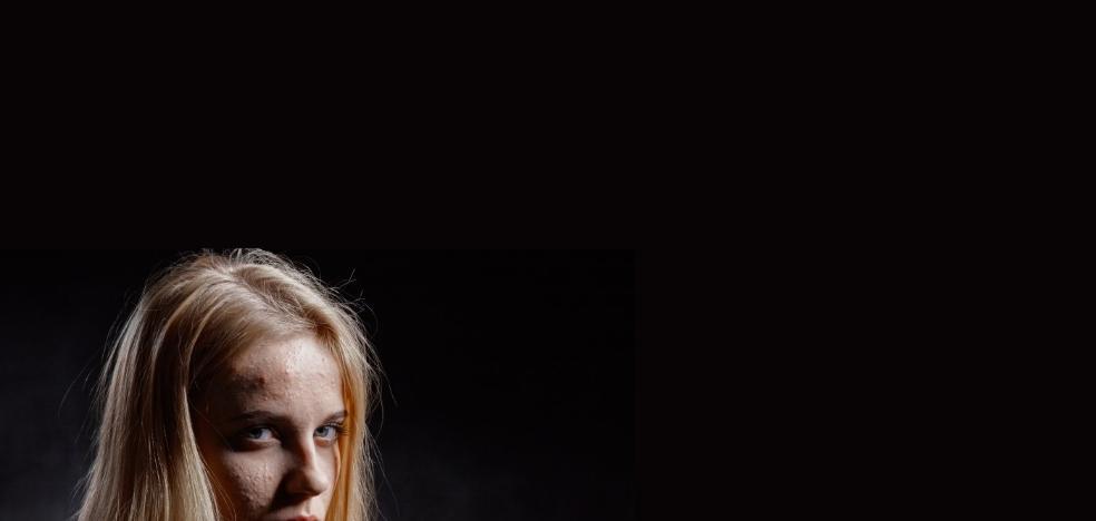 La relación entre acné y depresión, confirmada por los expertos
