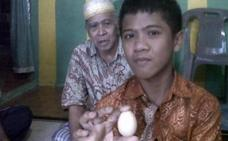 Estudian el extraño caso de un niño que asegura poner huevos
