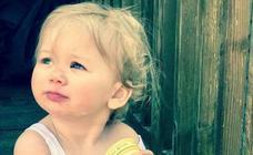 El rarísimo caso de la niña que tiene alergia al agua: cuando se baña le salen quemaduras