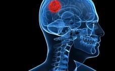 La maravilla de la Medicina: operar un tumor cerebral con la voz y los gestos