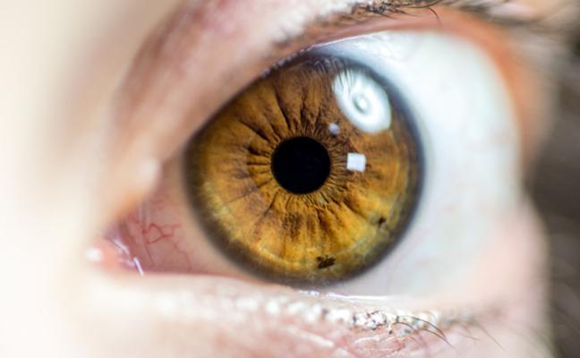 El glaucoma, la enfermedad silenciosa