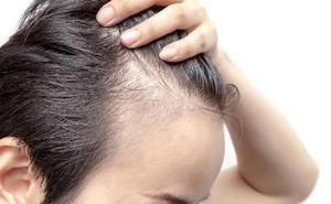 Los expertos en alopecia auguran el fin de la calvicie en 10 años