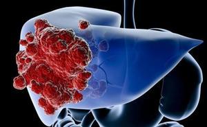 Descubren una nueva proteína para luchar con el cáncer de hígado