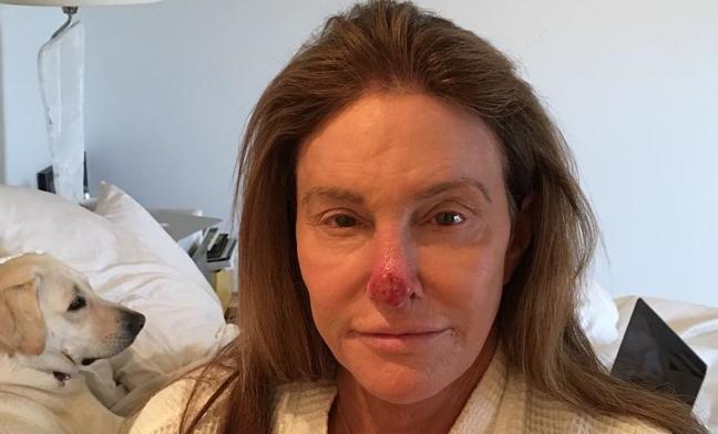 Caitlyn Jenner publica una impactante imagen con la que anuncia que padece cáncer de piel