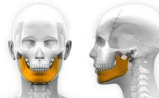 Implantan a un niño una mandíbula creada con una impresora 3D