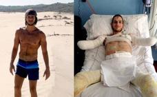 La dramática historia de David, el joven que ha perdido brazos y piernas por una infección