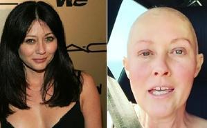 Shannen Doherty, actriz de 'Embrujadas', se somete a una reconstrucción mamaria tras dos años de lucha contra el cáncer