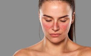 Las preocupantes señales de tu cuerpo que te dicen que tienes lupus