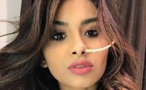 Muere Nara Almeida, la modelo que relató su lucha contra el cáncer en Instagram