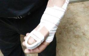 Un apuñalado y un policía herido en una pelea multitudinaria con más de 40 personas en la feria de Íllora