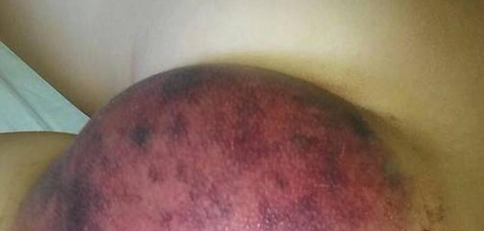 Hospitalizado un niño que fue succionado por uno de los sumideros del Mario Park