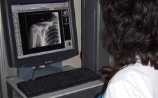 El hospital de Úbeda contará con nuevos equipos de diagnóstico de alta tecnología