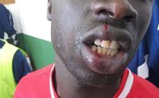 Un futbolista del equipo Alma de África recibe una brutal agresión en Cádiz