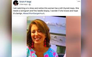 Un médico detecta que una mujer padece cáncer de tiroides tras verla en televisión