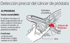 Uno de cada siete hombres desarrollará cáncer de próstata en algún momento de su vida