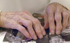 El virus del herpes podría tener relación con el alzhéimer