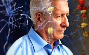 Estos son los alimentos que te ayudan a prevenir el alzhéimer