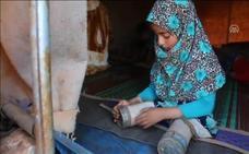 La niña siria de 8 años que usaba latas como prótesis recibe por fin solución