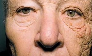 El detalle en esta foto que hace que los dermatólogos alerten del gran peligro del sol