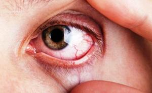 Una doctora alerta del «ladrón silencioso» de la vista: una enfermedad «devastatora»