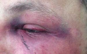 Detenido en Linares un joven acusado de agredir a tres policías cuando vendía droga en un local de ocio