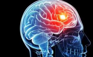 Científicos españoles crean un nuevo tratamiento contra el ictus «muy prometedor»