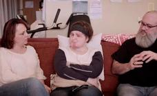 Una chica de 21 años, la más joven del mundo en recibir un trasplante de cara completo