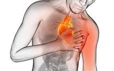 Un estudio médico alerta sobre el medicamento que aumenta un 50% la probabilidad de sufrir infartos