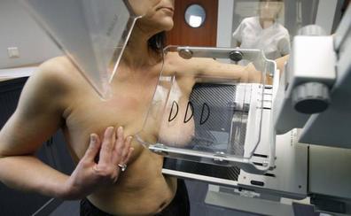 Cada año se detectan 500 nuevos casos de cáncer de mama en Almería