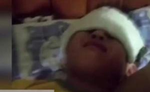 40 niños heridos tras el descuido de una profesora con una luz ultravioleta en China
