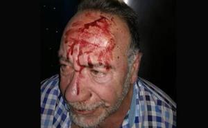 Detenido un hombre por agredir a un concejal en Bailén