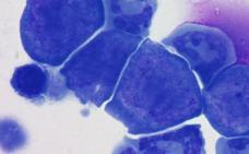 Logro español contra el cáncer: la primera inmunoterapia muestra eficacia en los pacientes