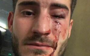 Agresión homófoba en el metro de Barcelona a un joven de Huelma