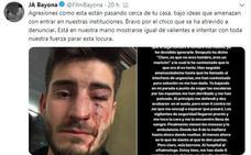 Ola de solidaridad con Diego Martos