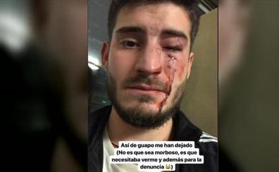 El Consejo General de Enfermería condena la «brutal agresión homófoba» al jienense Diego Martos