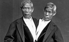 La impactante historia de los siameses que triunfaron y tuvieron 21 hijos
