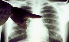 Acude 20 veces a urgencias, insisten en que tiene neumonía y acaban descubriéndole un cáncer con metástasis