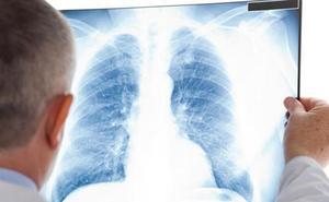 El peligro del gas radón en las casas: puede provocar cáncer de pulmón